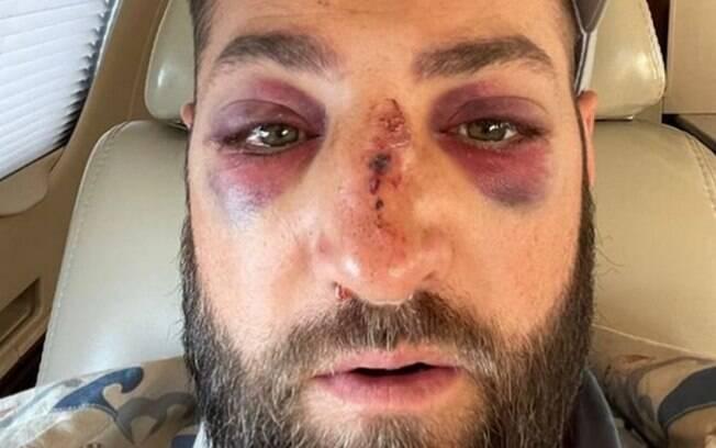 Kevin Pillar levou bolada no rosto a 150 km/h