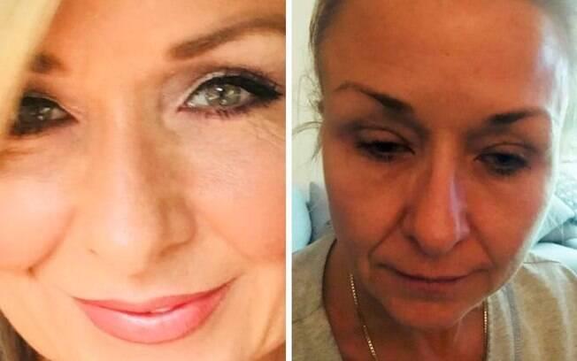 Theresa Lyinch cometeu o erro de maquiagem comum de não retirar os produtos antes de dormir e quase ficou cega