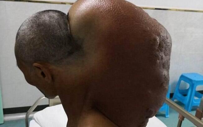 A massa retirada do pescoço de Xingfu pesava cerca de 15 quilos, segundo os especialistas