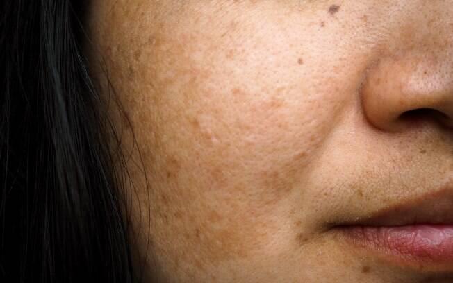 Aparecimento de manchas escuras na pele é mais comum em mulheres na idade fértil