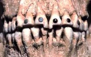 Quais foram os avanços da odontologia desde o início dos tempos