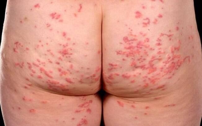Mulher teve as nádegas completamente infectada por bicho geográfico, conforme relatou o médico