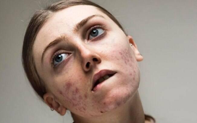 A modelo Louisa Northcote começou a compartilhar fotos da pele com acne para encorajar outras mulheres