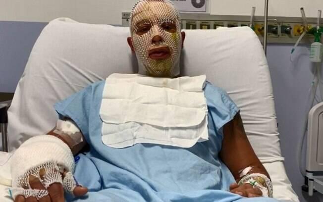 O prefeito Rógério Lins está no Hospital Municipal Antõnio Giglio, em Osasco, após se ferir na explosão de uma fogueira de uma festa junina