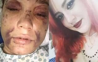 """""""Não saio na rua por medo"""", diz mulher que teve rosto deformado por motorista"""