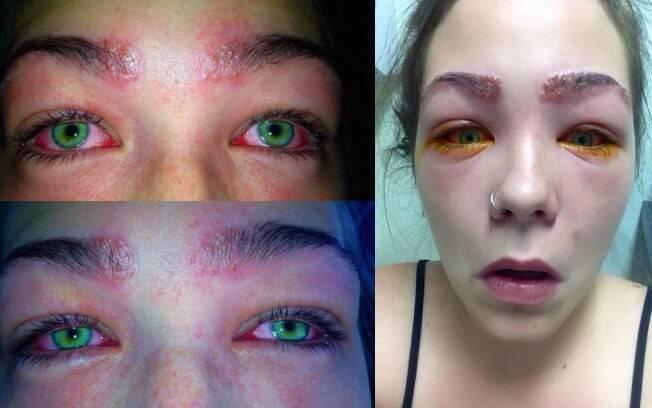Reação alérgica causou queimaduras nas sobrancelhas e fez com que lágrimas e pus escorressem dos olhos da jovem
