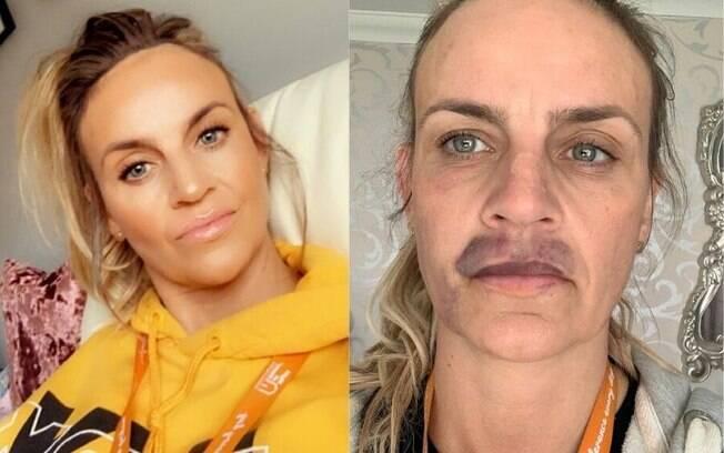 A britânica Kelly Rogers teve problemas após fazer um preenchimento labial
