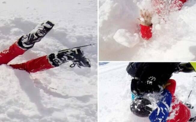 Mulher ficou presa na neve, de cabeça para baixo, após cair de esqui