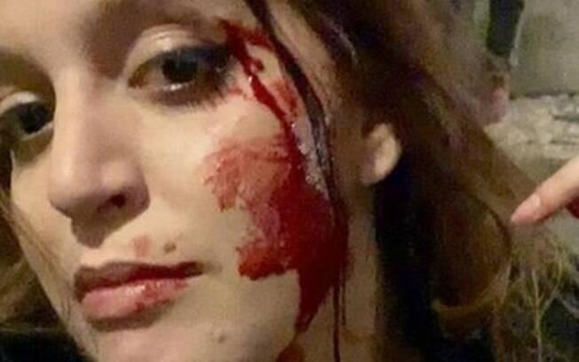 Estudante brasileira, Sophia Velho foi vítima de violência e xenofobia em Lisboa