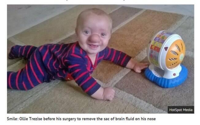 Ollie nasceu com uma condição rara que faz com que seu cérebro cresça através de uma rachadura e vá para o nariz