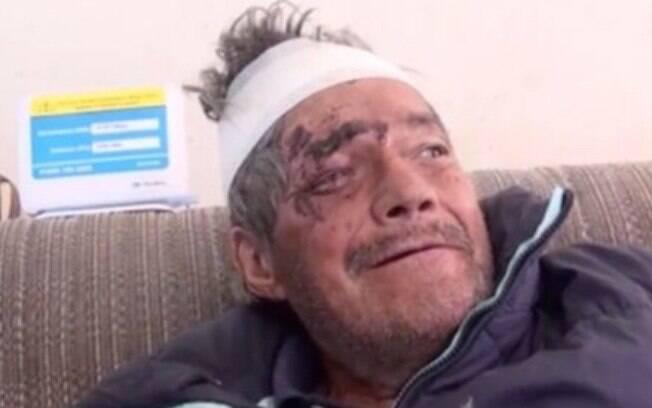 Miguel Angel Gomar De Luna voltou bêbado e machucado para casa dois meses após ter sido