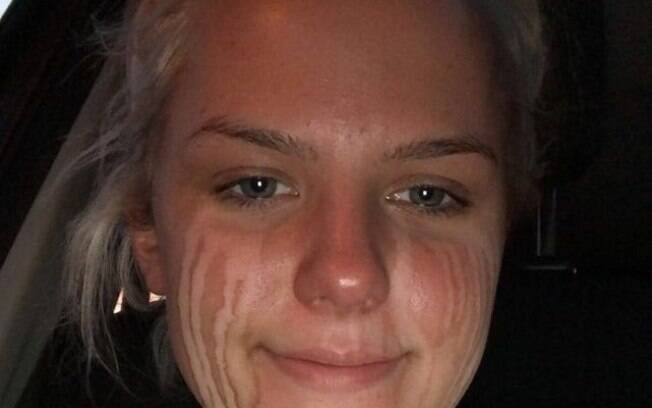 Alex ficou conhecida no mundo todo como a garota do bronzeamento artificial depois de publicar a foto que viralizou