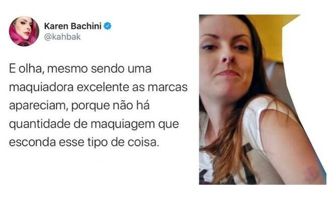 Karen Bachini acusa Fred Elboni de também tê-la agredido em uma viagem