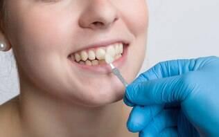 Lente de contato dental pode causar cáries nos dentes?