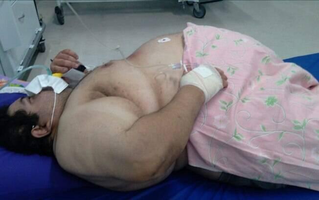 Paciente precisou ser transferido, mas não resistiu ao quadro de insuficiência cardíaca