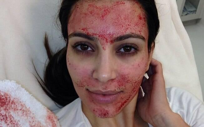 Kim Kardashian publicou a foto de seu rosto banhado em sangue após o