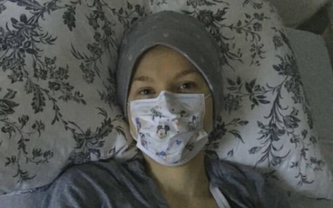 Apenas os irmãos podem se aproximar de Johanna sem que a americana manifeste os sintomas graves da alergia