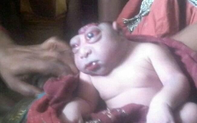 Bebê indiano nasce com doença rara e médicos acreditam ser ictiose arlequim ou anencefalia.