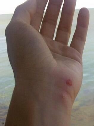 A mão ferida de Shakira após o ataque do leão-marinho