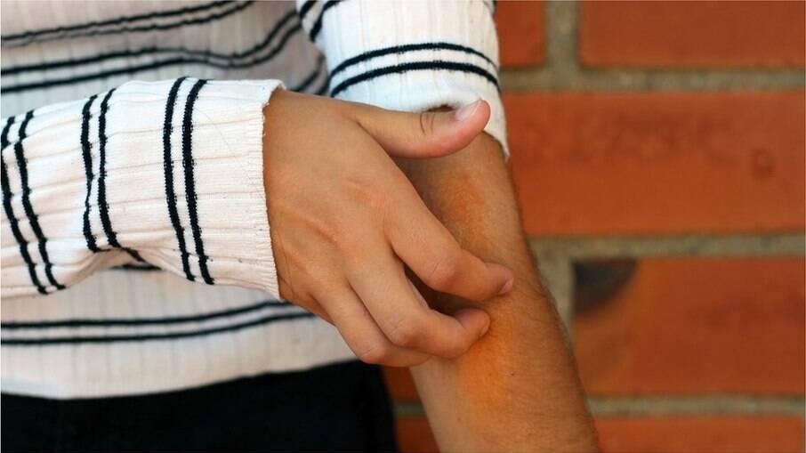 Lesões na pele podem ser indicativo de Covid-19; saiba mais