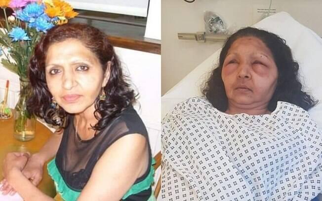 Antes e depois: ao perceber que estava tendo a reação alérgica, mulher buscou ajuda em um hospital, onde foi medicada
