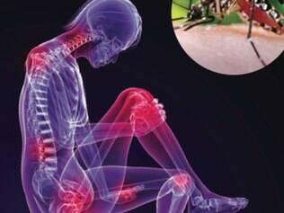 Desde o começo do ano foram confirmados 20 casos de chikungunya.