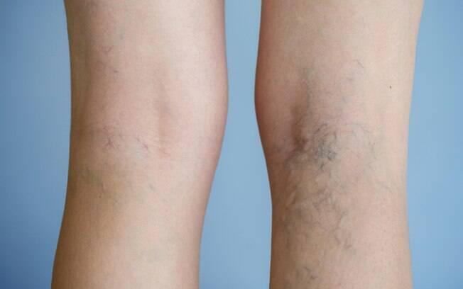 Varizes podem fazer com que mulheres evitem usar shorts, saias ou vestidos, além de causar sintomas como dores e cansaço