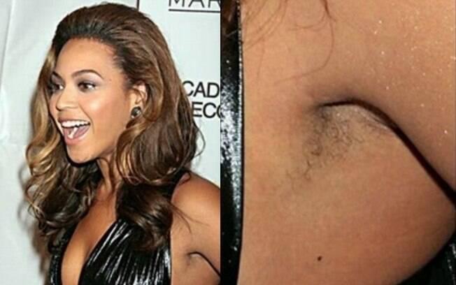Beyoncé já foi flagrada sem ter raspado as axilas