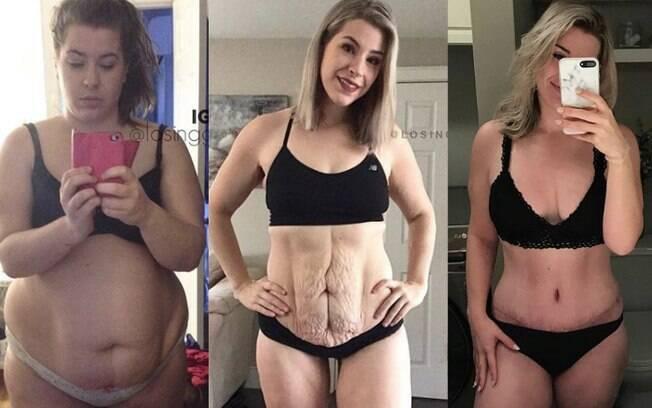 Canadense afirma que, antes da cirurgia para retirada de excesso de pele, ela conseguiu perder peso com mudança de vida