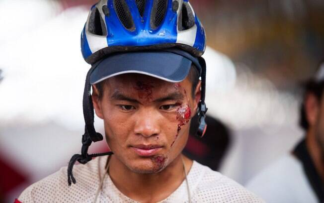 Chinês ganhou machucados no rosto ao longo do  Ecomotion/Pro