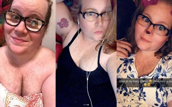 Miranda Nodine tem síndrome do ovário policístico e, entre os sintomas, está o crescimento excessivo de pelos no corpo