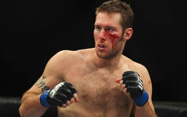 Nick Penner - Lutadores do UFC ficaram  desfigurados após batalhas dentro do octógono