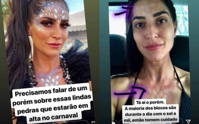 A atriz Maria Joana compartilhou registros de 'antes e depois' do look de carnaval e as fotos viralizaram como um alerta