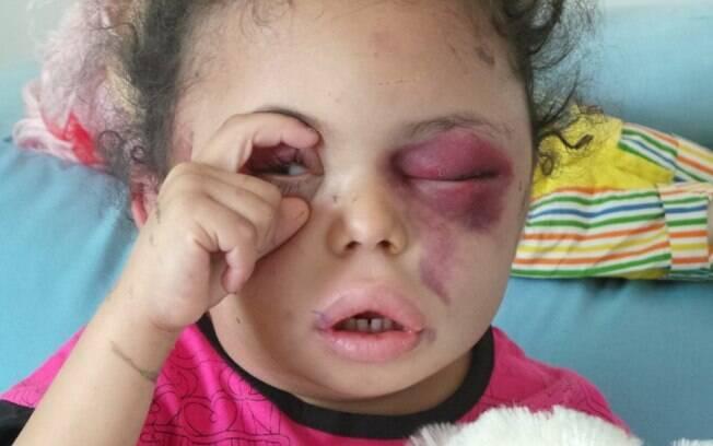 Buthania tentou abrir seus olhos enquanto jornalistas falavam com ela, no hospital; ela perdeu sua família inteira