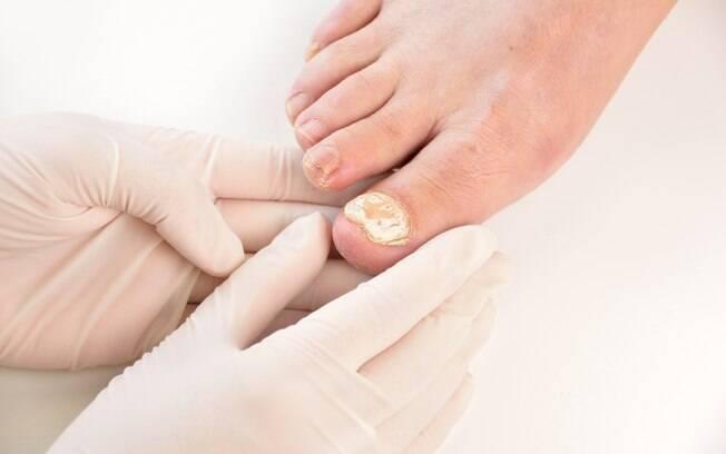 Infecções causadas por fungos que atingem a pele, as unhas e os cabelos são classificadas como micoses, comuns no verão