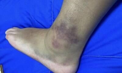 Brasileira Pâmela Rosa mostra tornozelo inchado: 'Fui até onde consegui'