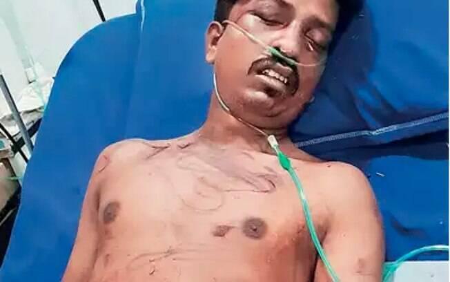 Indiana corta pênis de vizinho como vingança por assédio que sofria