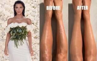 Kim Kardashian mostra como usa maquiagem para disfarçar doença na pele