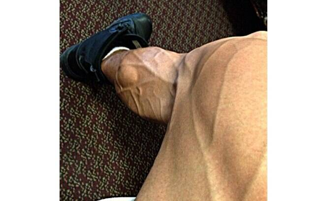 Felipe Franco divulgou uma foto da perna e chamou a atenção dos seguidores