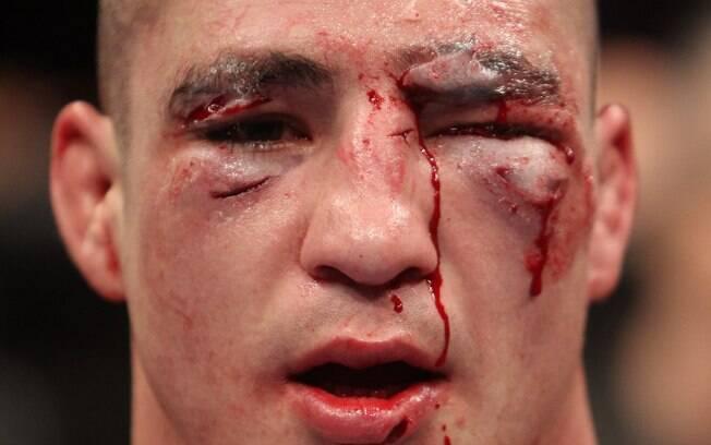 Mark Hominick - Lutadores do UFC ficaram  desfigurados após batalhas dentro do octógono
