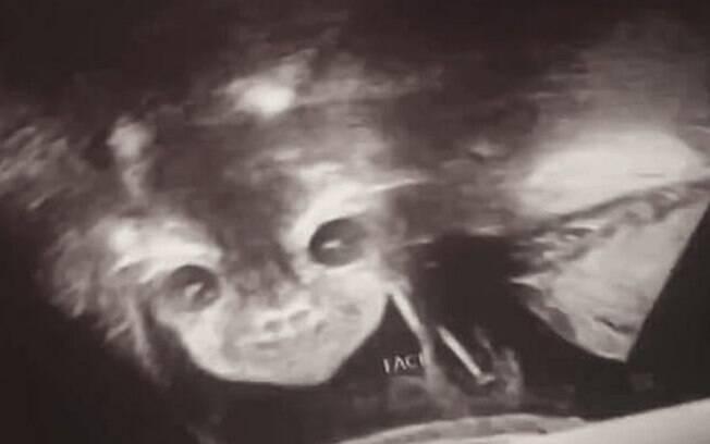 A mãe viu o rosto do 'bebê demônio' durante um exame de ultrassom para descobrir se terá um menino ou uma menina