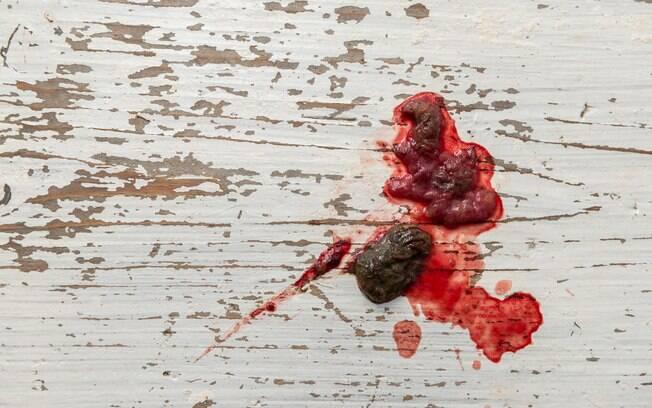 As fezes com sangue podem ter diferentes causas