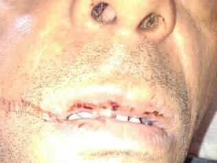 Vítima sofreu cortes da boca e se recupera em casa