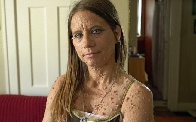 A americana sofre de uma rara condição que provoca milhares de tumores em seu corpo