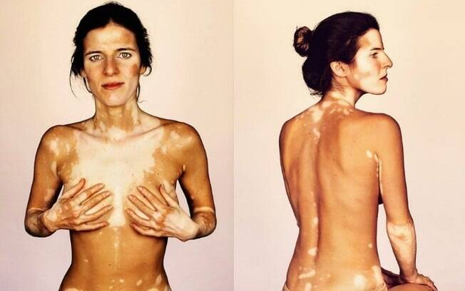 Sandra é a voluntária brasileira que faz parte da série fotográfica de Brock Elbank sobre pessoas com vitiligo