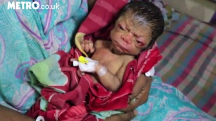 Bebê indiano nasce com doença rara que o faz parecer um idoso  - Mundo - iG