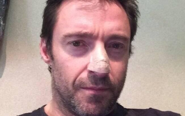 Hugh Jackman trata câncer de pele