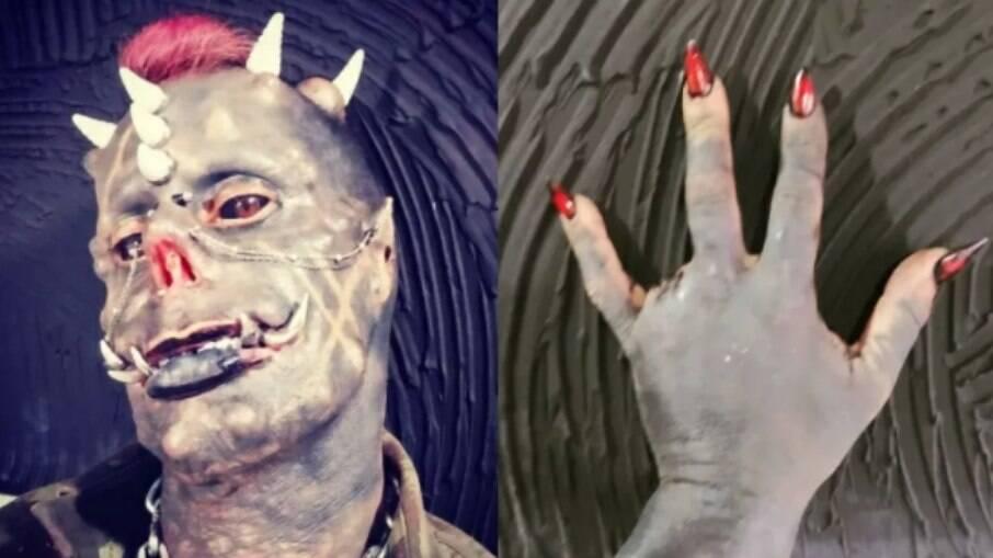 Tatuador removeu um dedo da mão em mais uma das transformações