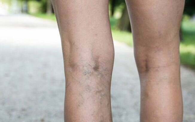 As varizes tornam-se mais comuns durante o verão, por conta da dilatação dos vasos sanguíneos, provocada por altas temperaturas