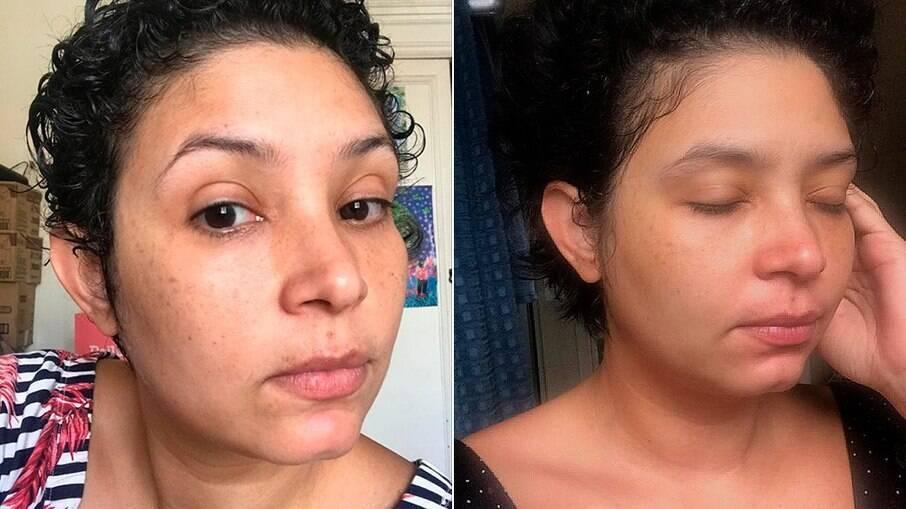 Antes e depois da pele após 20 dias de uso